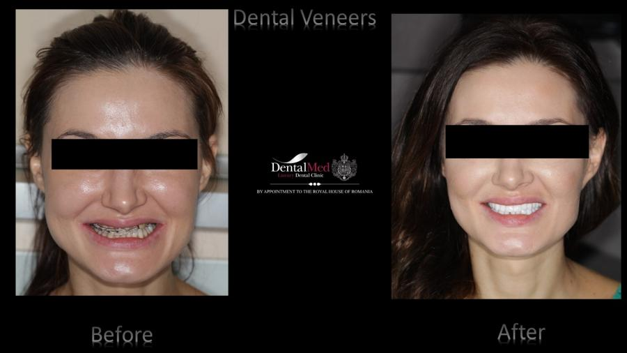 Dental Veneers case study 2