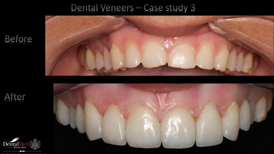 Dental Veneers case study 3
