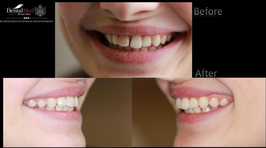 Dental Veneers case study 1